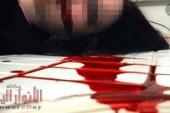 أب يذبح ابنته وعشيقها من العنق في عيد الأضحى.. اعرف التفاصيل